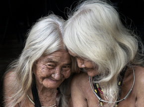 Europejskie włosy szybciej się starzeją