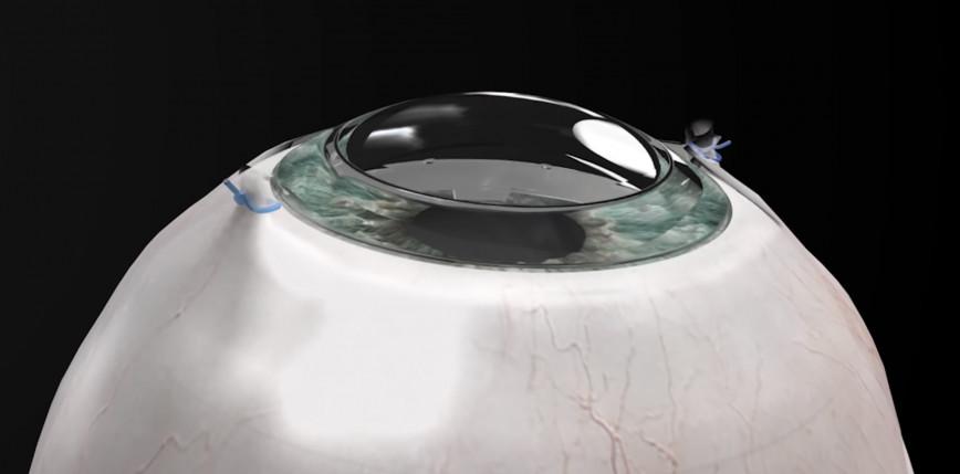 Syntetyczna rogówka pomogła 78-latkowi odzyskać wzrok